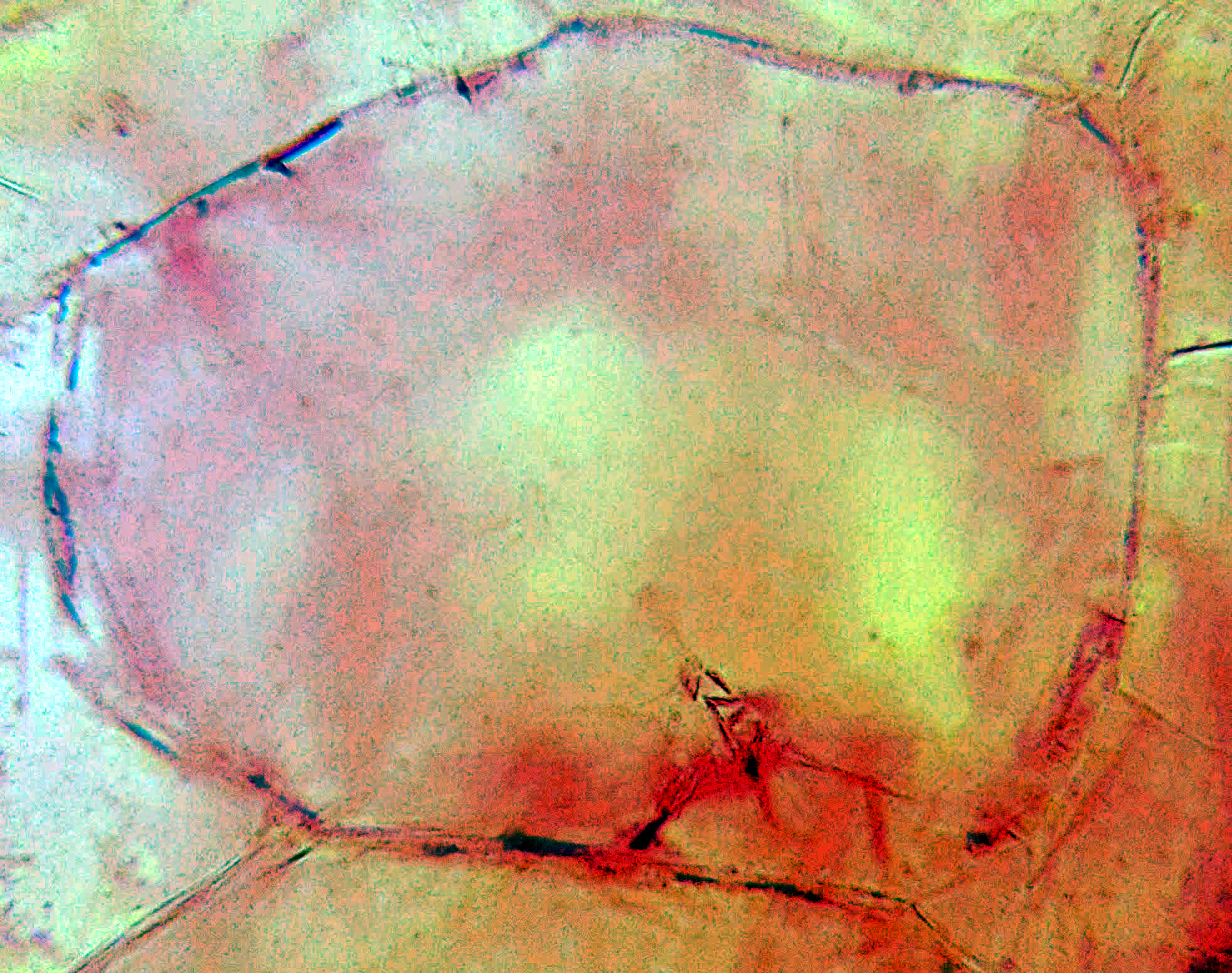 Мякоть Арбуза Обыкновенного в микроскоп